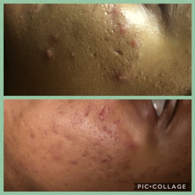Image Skincare Acne Chemical Peels