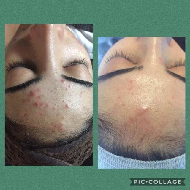 Facials for acne Image Skincare